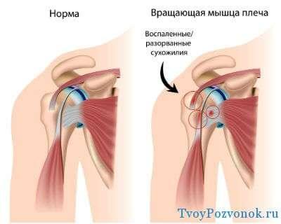 Возникновение боли в плечевом суставе