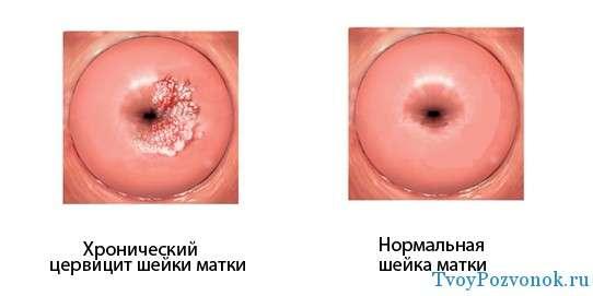 Цевицит - одна из причина болей