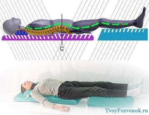 Метод действия детензор терапии