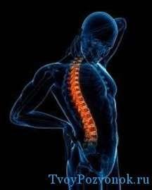Дорсалгия (боли в спине) - что делать?