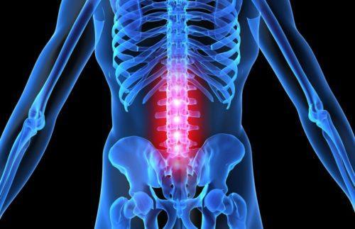 Менингит спинного мозга