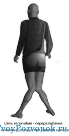 Переразгибание коленных суставов при сухотке