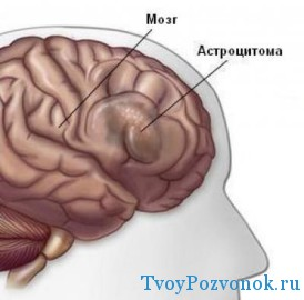 Астроцитома головного мозга