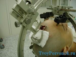 Хирургические методы лечения