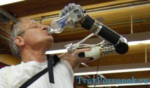 Бионическая рука у пациента