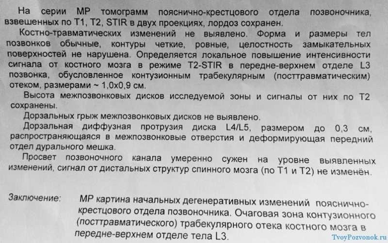 Заключение МРТ - Станислав