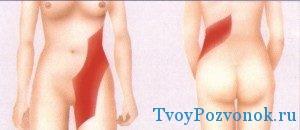 Очаг болевого синдрома в ноге и спине