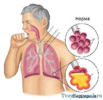 Пневмония как причина боли