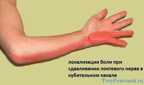 Локализация боли при синдроме