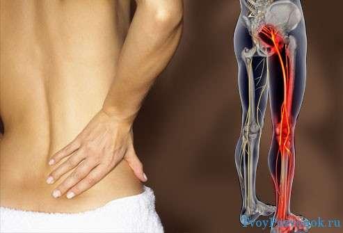 Боль в пояснице и онемение ноги