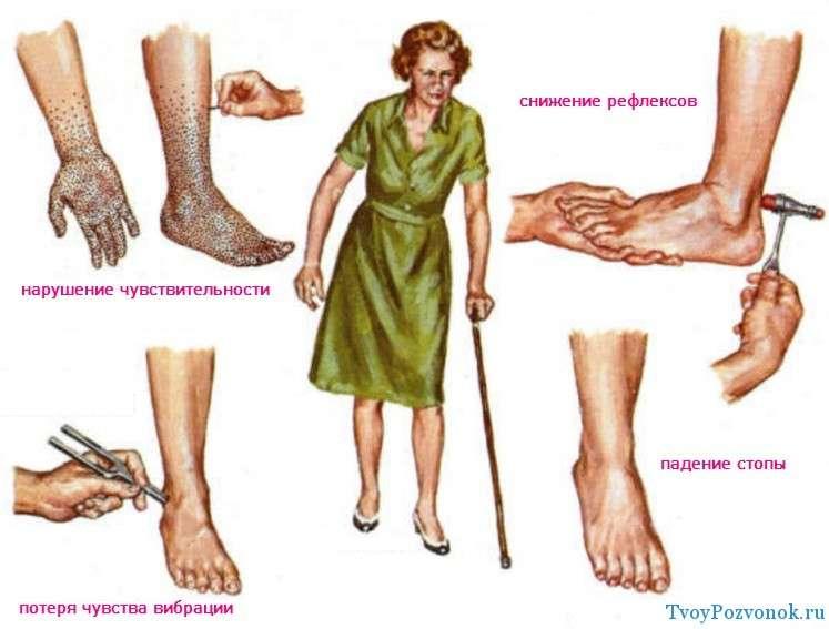 признаки полинейропатии