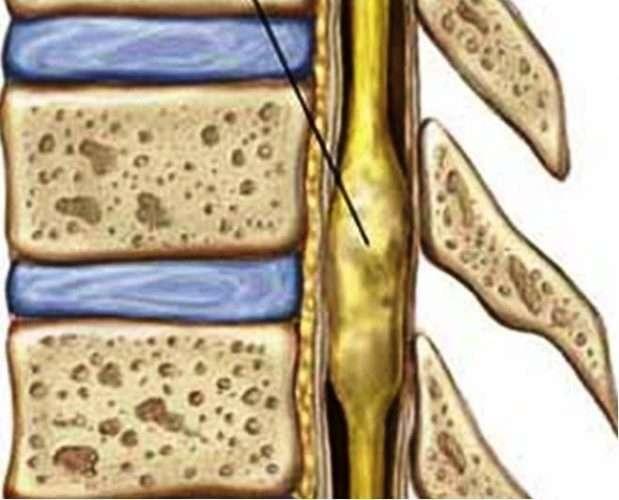 рак спинного мозга