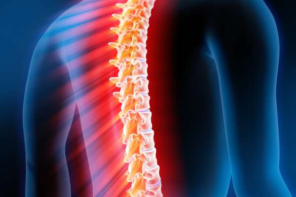 миелит - воспаление спинного мозга