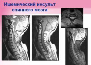 спинальный инсульт