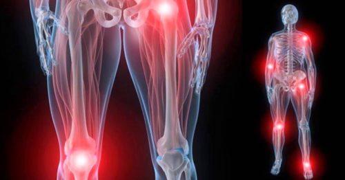 Боли в костях и суставах при миеломе