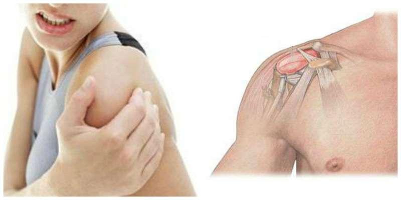 боль при невралгии плечевого сустава