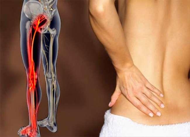 Защемление седалищного нерва: справляйтесь с болезнью правильно