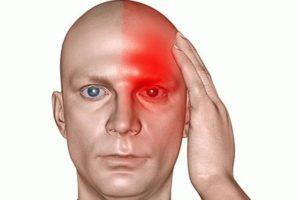 Односторонняя головная боль