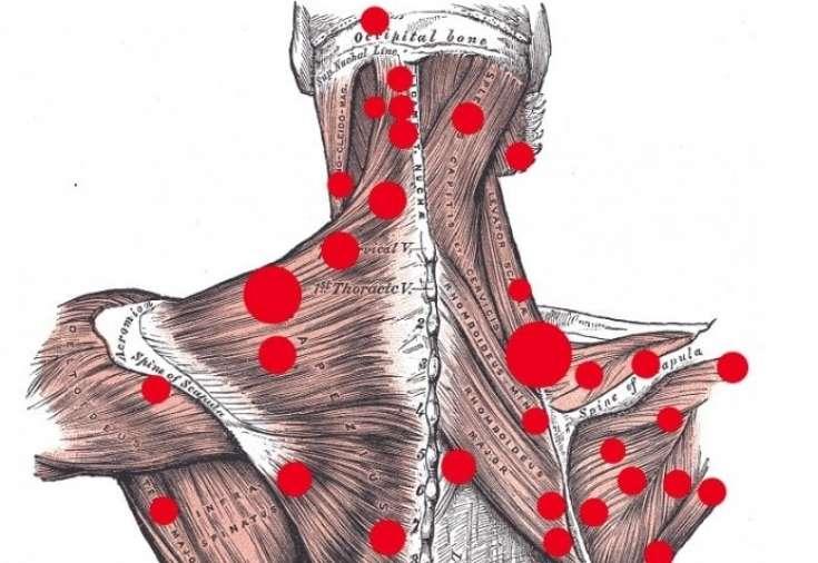 Триггерные точки шейно-грудного отдела