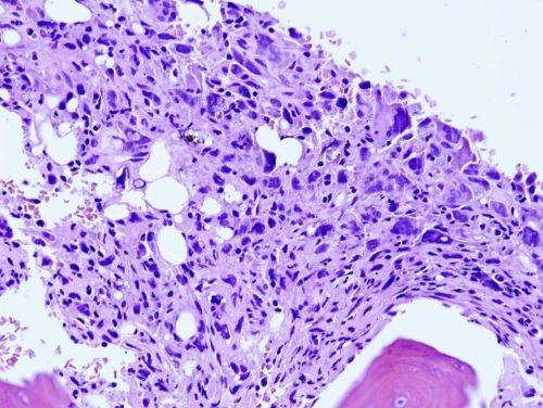 Гигантоклеточная опухоль