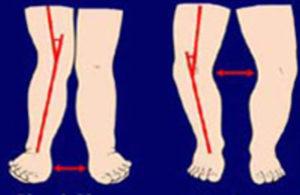 Изменение костей при рахите