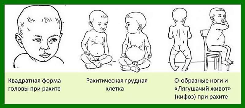 Симптомы рахита