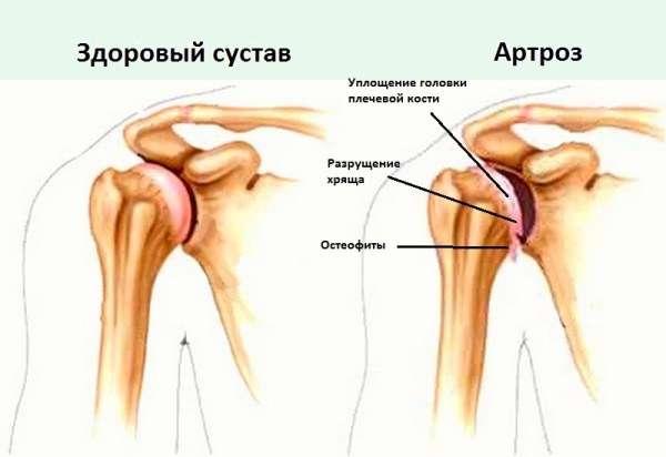 Артроз плечевого сустава 1