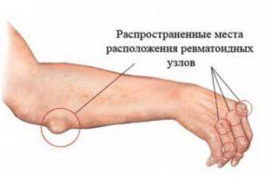Ревматические узелки