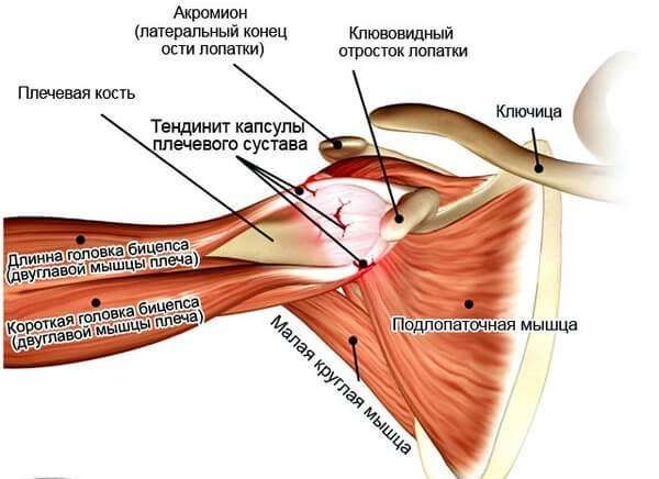 Тендинит плеча