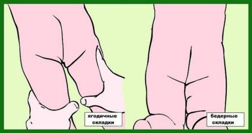 Диагностика по кожным складкам